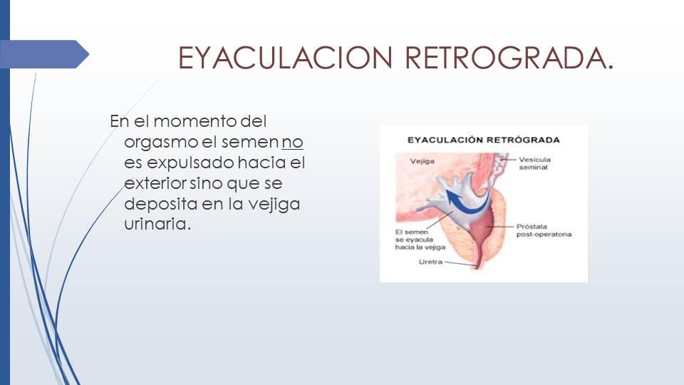 Diapositiva89